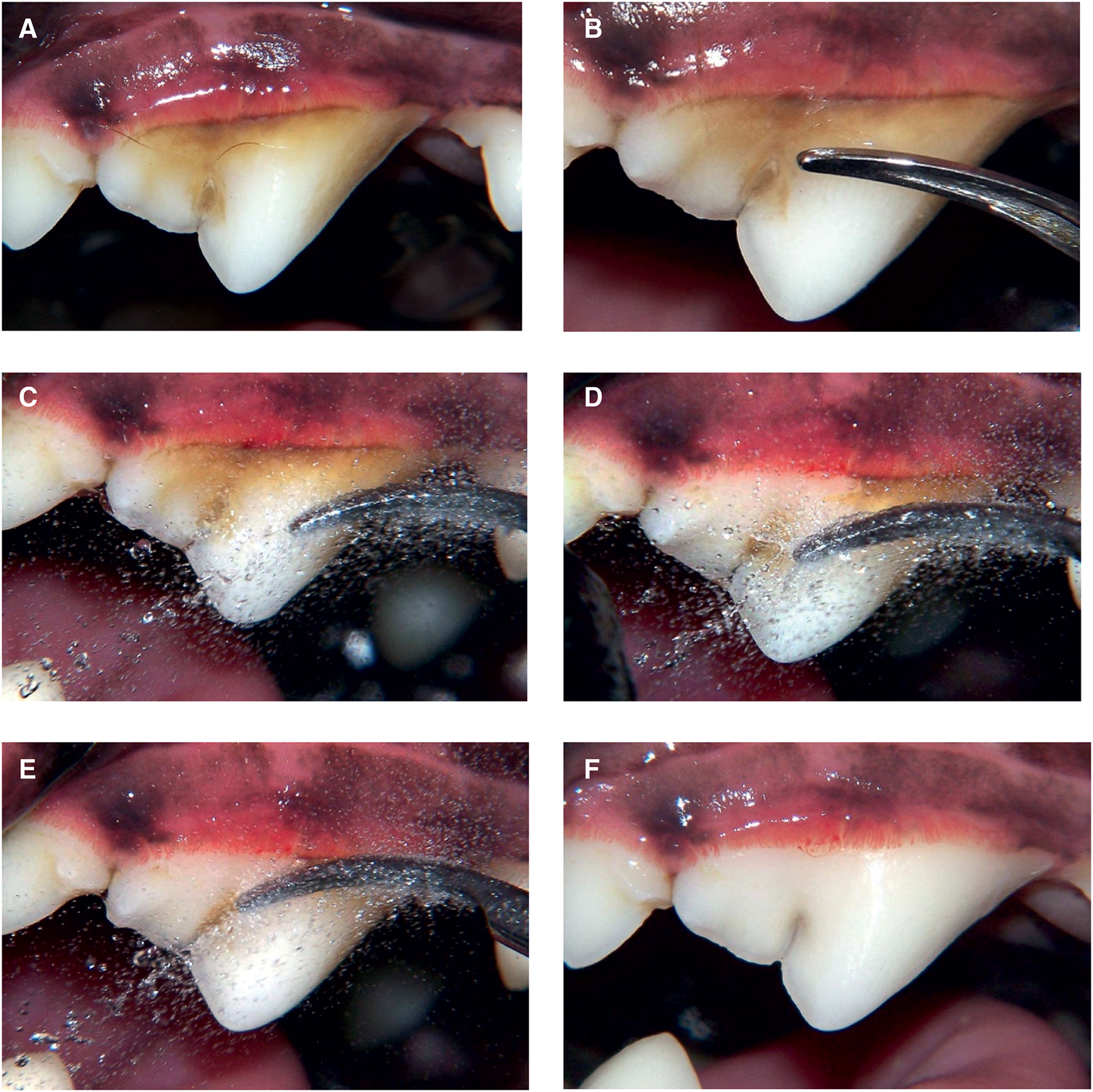 Sequence of dental cleaning